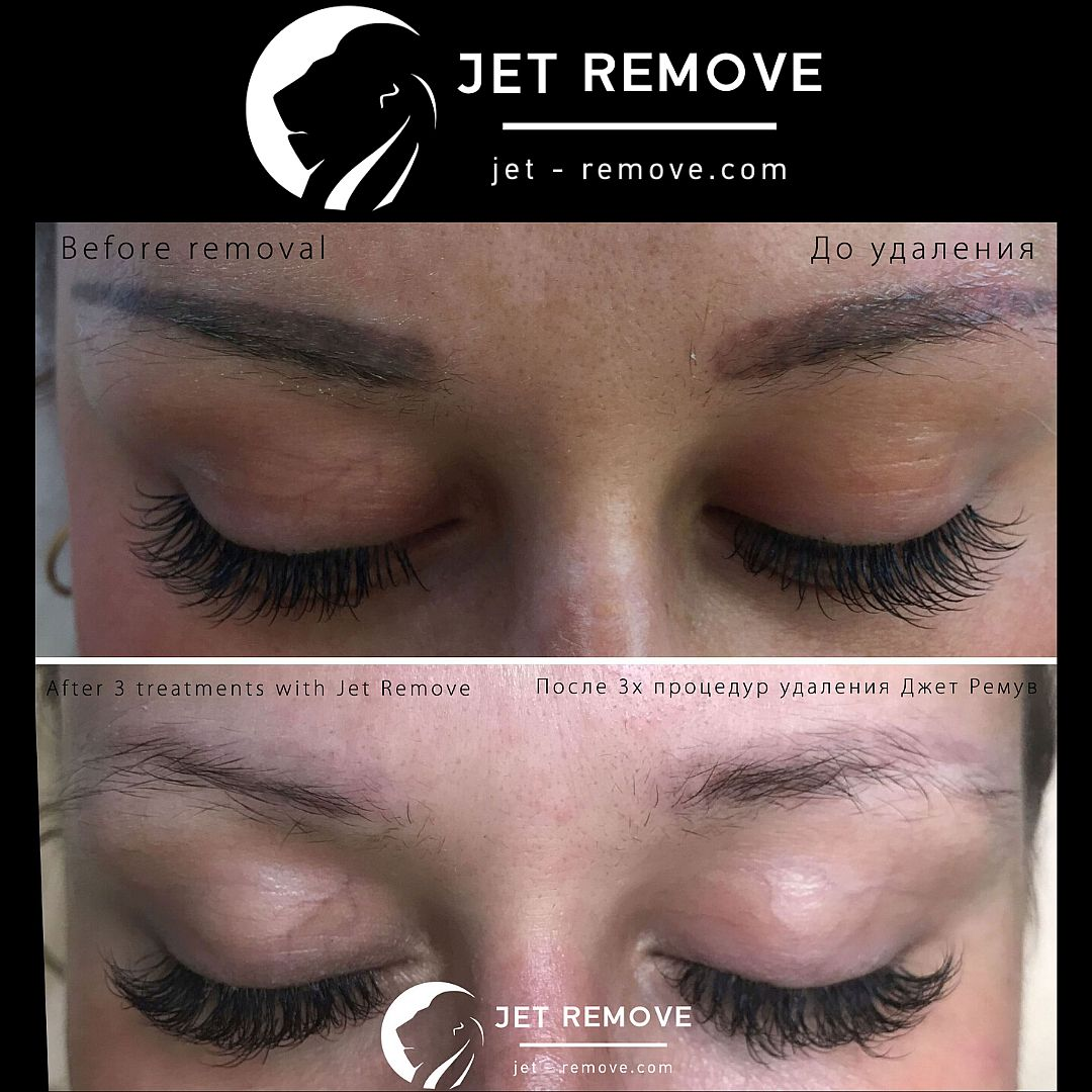 Tattoo Remover Jet Remove Permanent